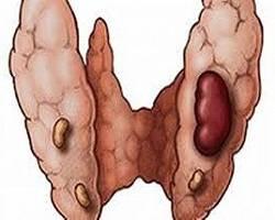 Adenoma schitovidnoj zelezi