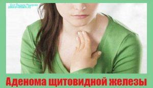 adenoma-shhitovidnoj-zhelezy