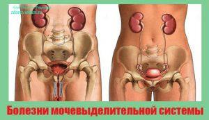 bolezni-mochevydelitelnoj-sistemy