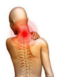 Osteochondroz shei
