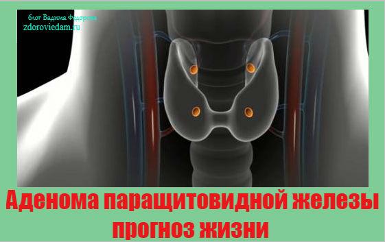 adenoma-parashhitovidnoj-zhelezy-prognoz-zhizni