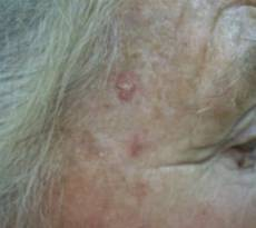 aktinicheskij-keratoz-simptom
