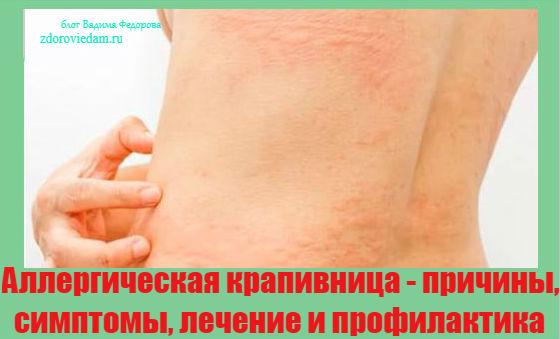 allergicheskaya-krapivnitsa