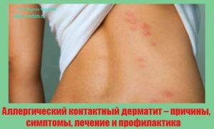 allergicheskij-kontaktnyj-dermatit