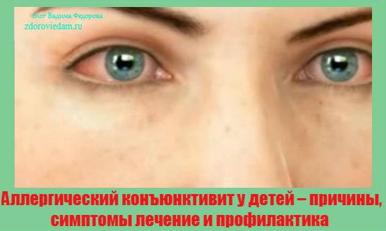 allergicheskij-konyunktivit-u-detej-prichiny-simptomy-lechenie-i-profilaktika