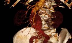 anevrizma-bryushnoj-aorty-tomographija