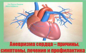 anevrizma-serdtsa