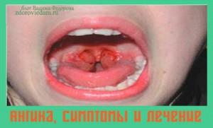 angina-simptomy-i-lechenie