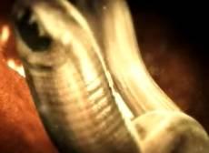 ankilostomidoz-ancilostoma-atakuet