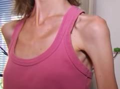anoreksiya-simptomi