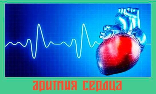 aritmiya-serdtsa