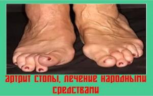 artrit-stopy-lechenie-narodnymi-sredstvami