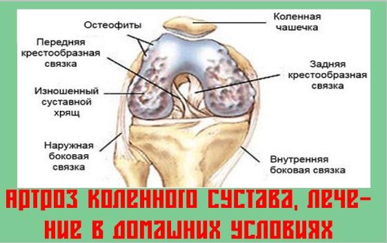 Артроз коленного сустава, лечение в домашних условиях | Как ...