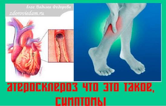 ateroskleroz-chto-eto-takoe