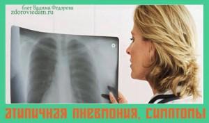 atipichnaya-pnevmoniya-simptomy