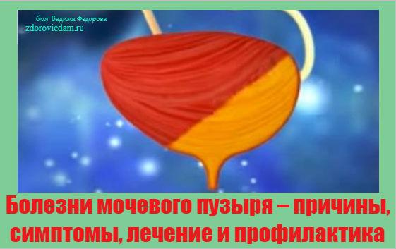 bolezni-mochevogo-puzyrya