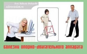 bolezni-oporno-dvigatelnogo-apparata