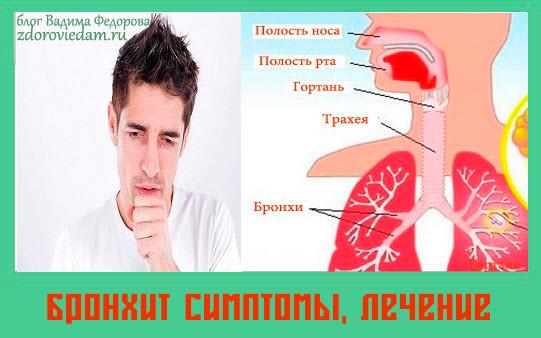 bronhit-simptomy-lechenie