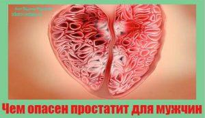 chem-opasen-prostatit-dlya-muzhchin