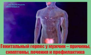genitalnyj-gerpes-u-muzhchin-prichiny-simptomy-lecheniya-i-profilaktika