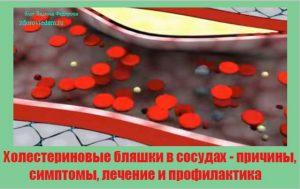 holesterinovye-blyashki-v-sosudah-prichiny-simptomy-lechenie-i-profilaktika
