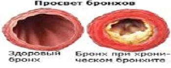 hronicheskij-bronhit