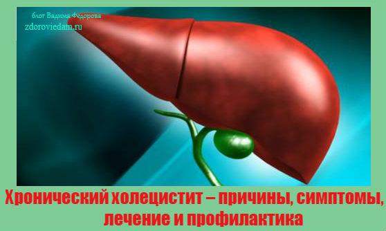hronicheskij-holetsistit-prichiny-simptomy-lechenie-i-profilaktika