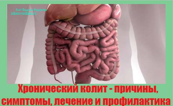 hronicheskij-kolit
