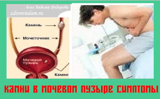 kamni-v-mochevom-puzyre-simptomy