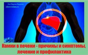 kamni-v-pecheni-prichiny-i-simptomy-lechenie-i-profilaktika