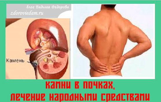 Как самостоятельно вылечить почки - Zdravie-info.ru