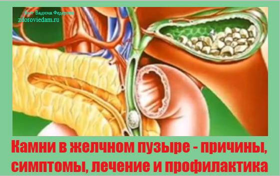 kamni-v-zhelchnom-puzyre-prichiny-simptomy-lechenie-i-profilaktika