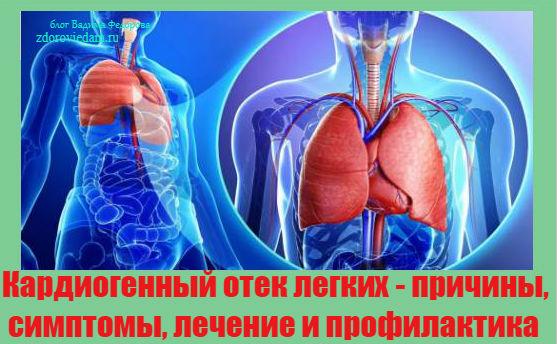 kardiogennyj-otek-legkih