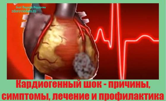 kardiogennyj-shok