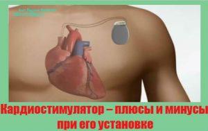kardiostimulyator-plyusy-i-minusy-pri-ego-ustanovke
