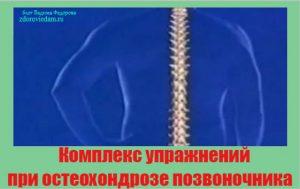 kompleks-uprazhnenij-pri-osteohondroze-pozvonochnika