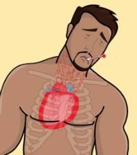 konstriktivnyj-perikardit-simptomi