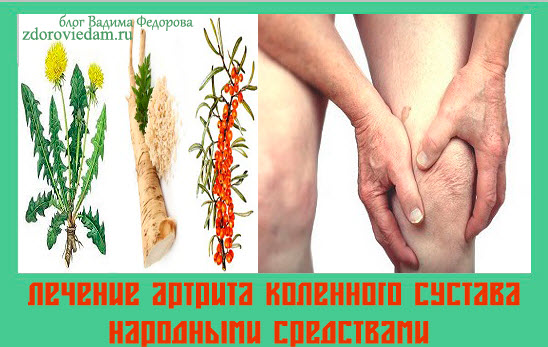 Народное средство от артрита коленного сустава остеоартрит тазобедренного сустава лечение