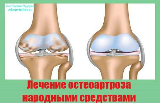 Народное средство от остеоартроз всех суставов боль в тазобедряном суставе