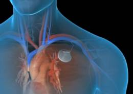mertsatelnaya-aritmiya-lechenie-kardiostimulator