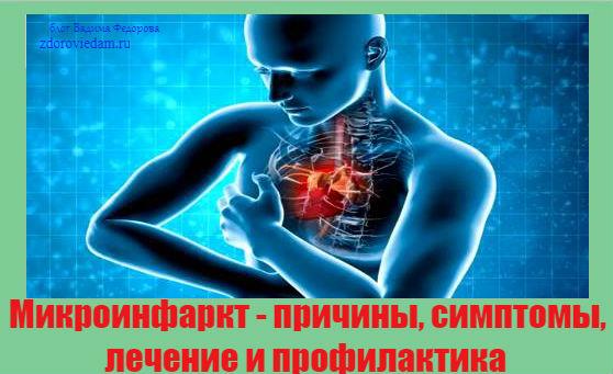 mikroinfarkt