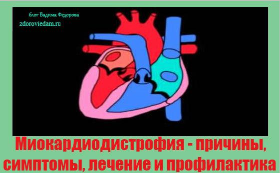 miokardiodistrofiya