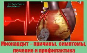 miokardit