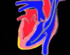 miokardit-biopsia