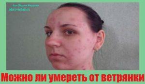 mozhno-li-umeret-ot-vetryanki