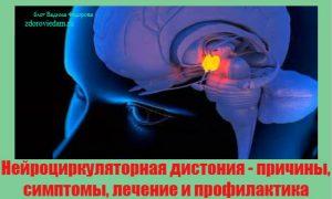 nejrotsirkulyatornaya-distoniya