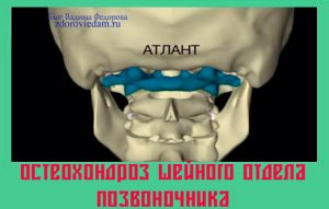 osteohondroz-shejnogo-otdela-pozvonochnika