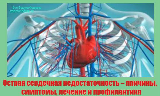 ostraya-serdechnaya-nedostatochnost-prichiny-simptomy-lechenie-i-profilaktika