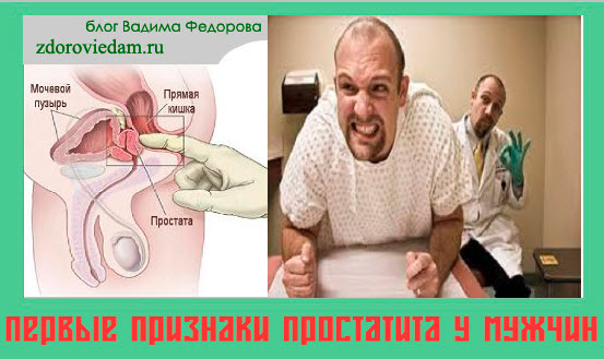 Причины и лечение простатита