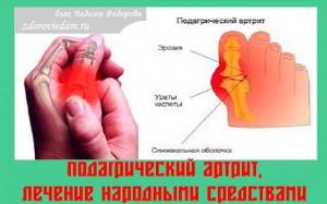 podagricheskij-artrit- lechenie-narodnymi-sredstvami